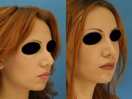 patient-11624-rhinoplasty-nosejob-before-after-2