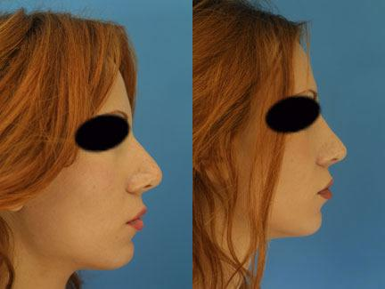 patient-11624-rhinoplasty-nosejob-before-after-3