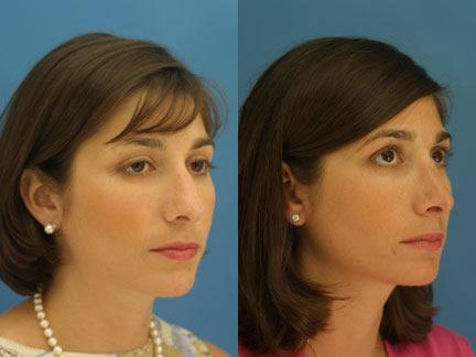 patient-11629-rhinoplasty-nosejob-before-after-2