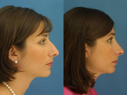 patient-11629-rhinoplasty-nosejob-before-after-3