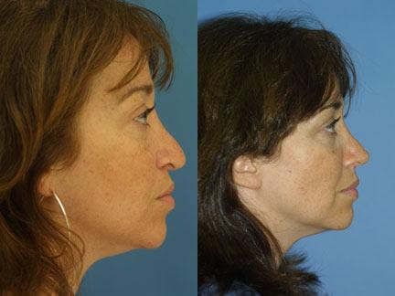 patient-11639-rhinoplasty-nosejob-before-after-3