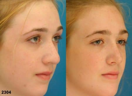 patient-11644-rhinoplasty-nosejob-before-after-2