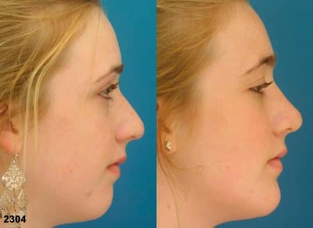 patient-11644-rhinoplasty-nosejob-before-after-3