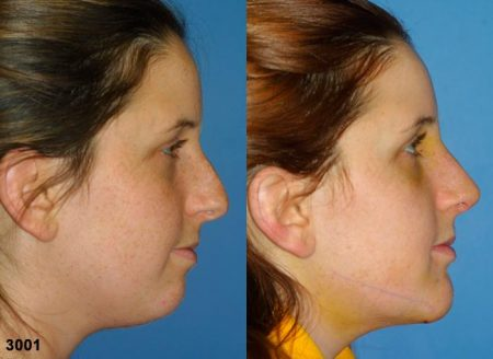 patient-11649-rhinoplasty-nosejob-before-after-1