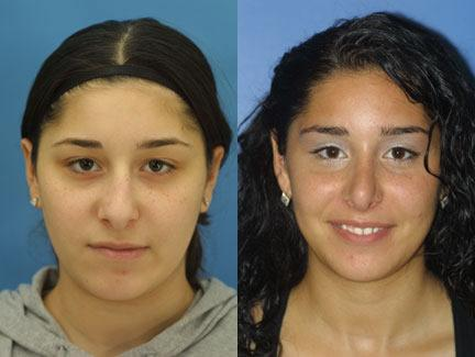 patient-11652-rhinoplasty-nosejob-before-after-3