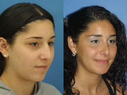 patient-11652-rhinoplasty-nosejob-before-after-4