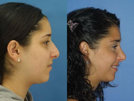 patient-11652-rhinoplasty-nosejob-before-after-5