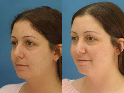 patient-11659-rhinoplasty-nosejob-before-after-2