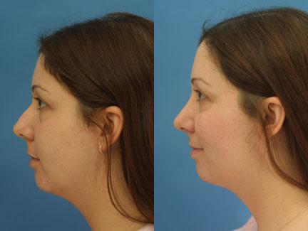 patient-11659-rhinoplasty-nosejob-before-after-3
