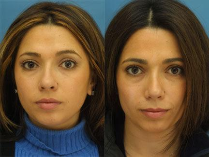 patient-11664-rhinoplasty-nosejob-before-after-2