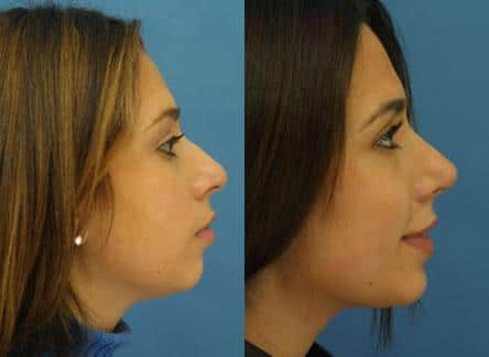patient-11664-rhinoplasty-nosejob-before-after-3