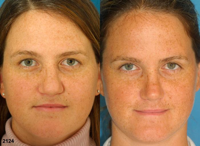 patient-11669-rhinoplasty-nosejob-before-after-2