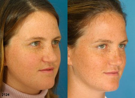 patient-11669-rhinoplasty-nosejob-before-after-3