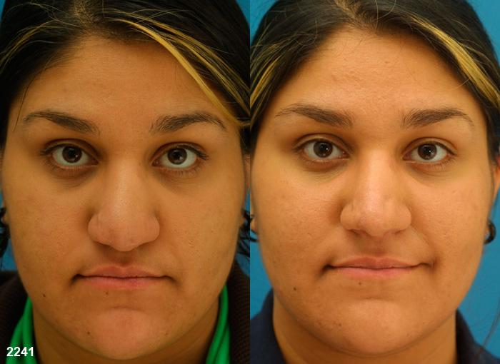 patient-11677-rhinoplasty-nosejob-before-after-3
