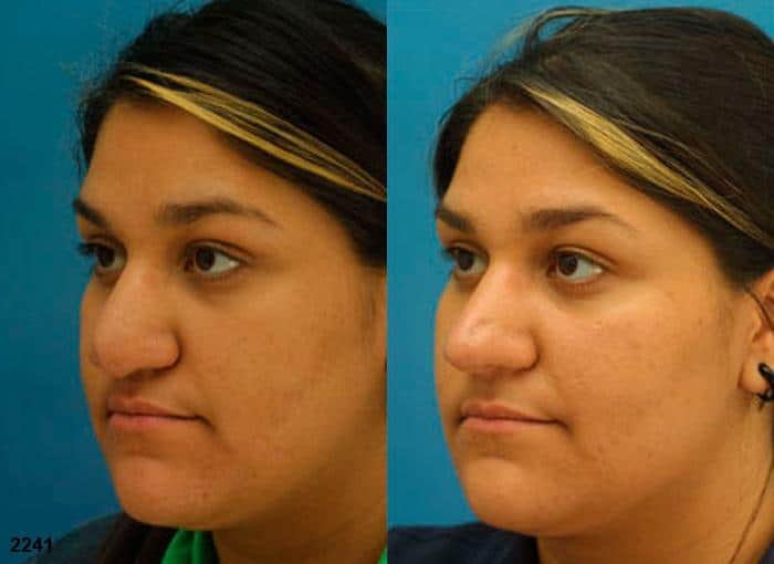 patient-11677-rhinoplasty-nosejob-before-after-4