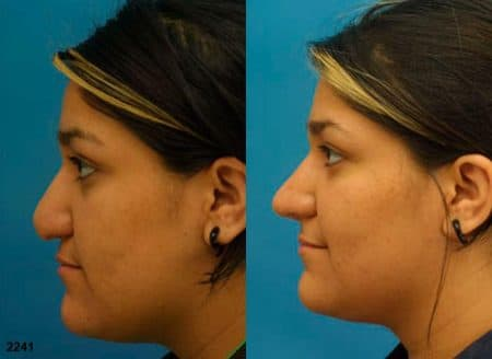 patient-11677-rhinoplasty-nosejob-before-after-5