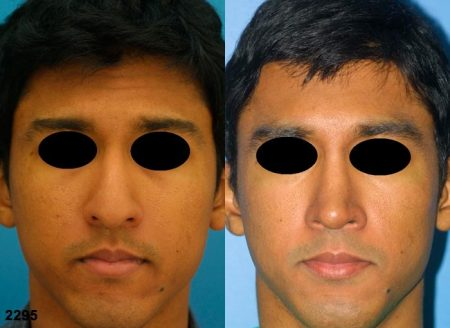 patient-11684-rhinoplasty-nosejob-before-after-3