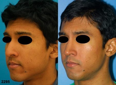 patient-11684-rhinoplasty-nosejob-before-after-4