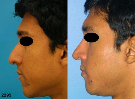 patient-11684-rhinoplasty-nosejob-before-after-5