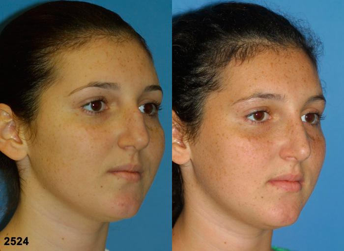 patient-11691-rhinoplasty-nosejob-before-after-3