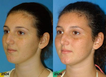 patient-11691-rhinoplasty-nosejob-before-after-4