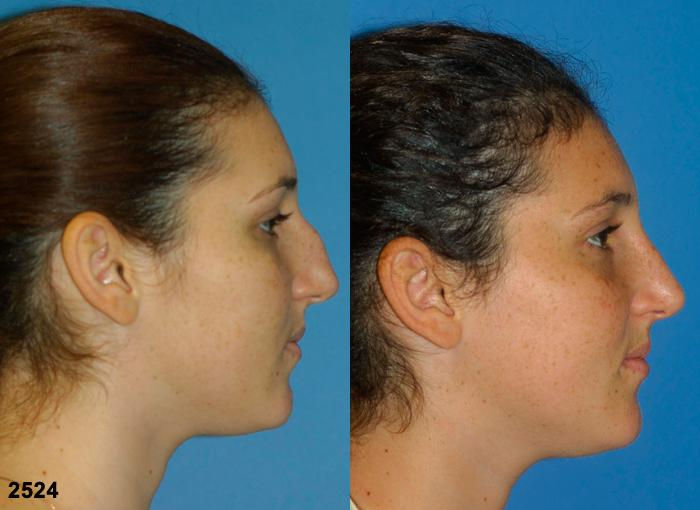 patient-11691-rhinoplasty-nosejob-before-after-5