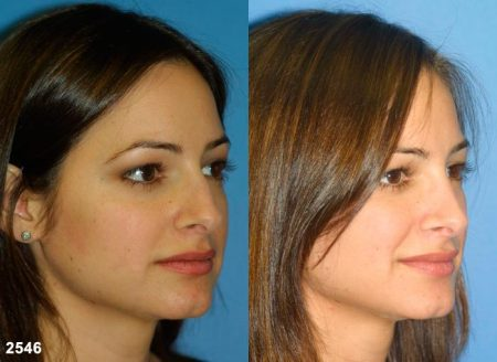 patient-11698-rhinoplasty-nosejob-before-after-3