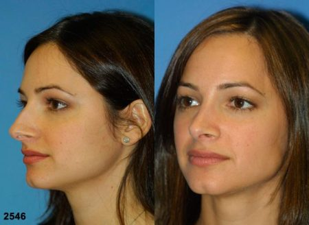 patient-11698-rhinoplasty-nosejob-before-after-4