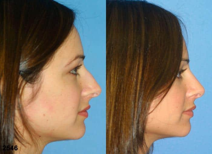 patient-11698-rhinoplasty-nosejob-before-after-5