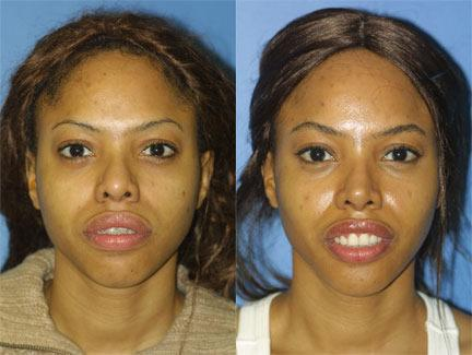 patient-11705-rhinoplasty-nosejob-before-after-3