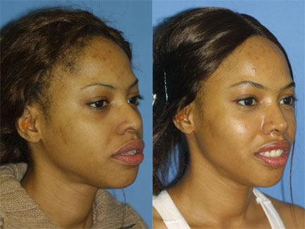 patient-11705-rhinoplasty-nosejob-before-after-4