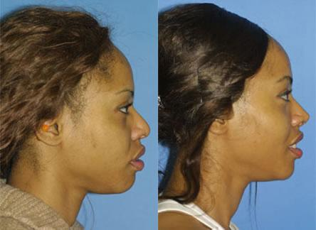 patient-11705-rhinoplasty-nosejob-before-after-5
