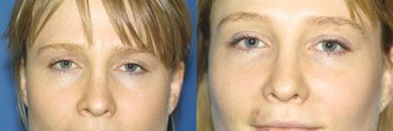patient-11712-rhinoplasty-nosejob-before-after-2