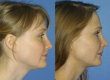 patient-11712-rhinoplasty-nosejob-before-after-3