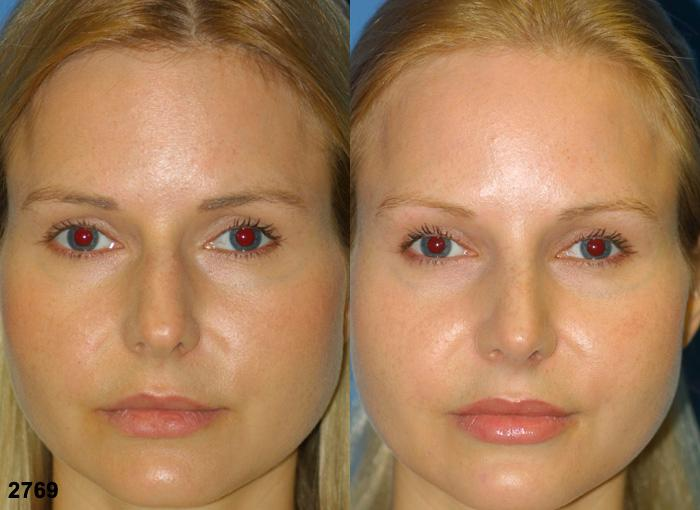 patient-11717-rhinoplasty-nosejob-before-after-3