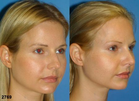 patient-11717-rhinoplasty-nosejob-before-after-4