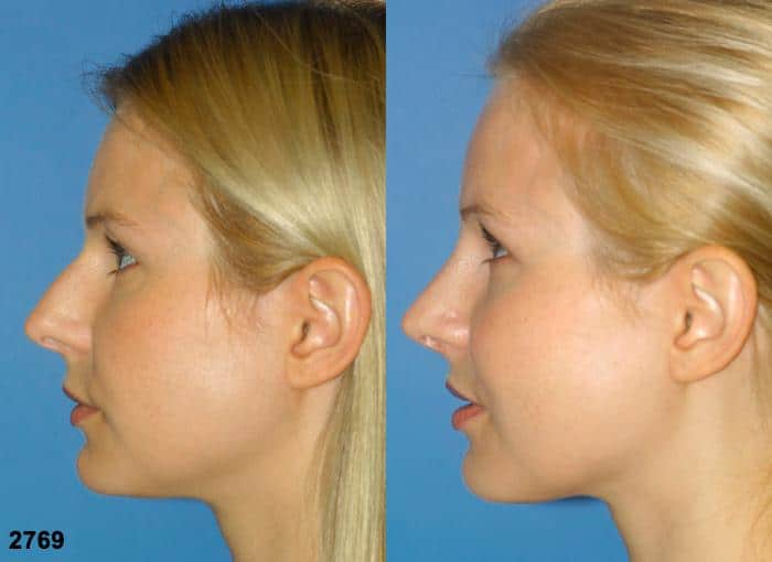 patient-11717-rhinoplasty-nosejob-before-after-5
