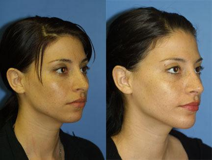 patient-11724-rhinoplasty-nosejob-before-after-3