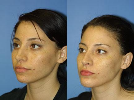patient-11724-rhinoplasty-nosejob-before-after-4