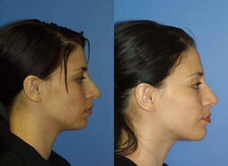patient-11724-rhinoplasty-nosejob-before-after-5