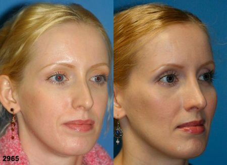 patient-11731-rhinoplasty-nosejob-before-after-3