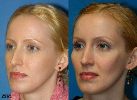 patient-11731-rhinoplasty-nosejob-before-after-4