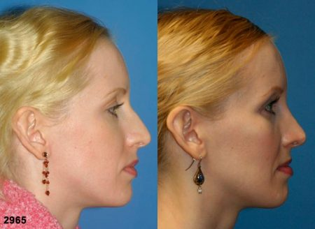 patient-11731-rhinoplasty-nosejob-before-after-5