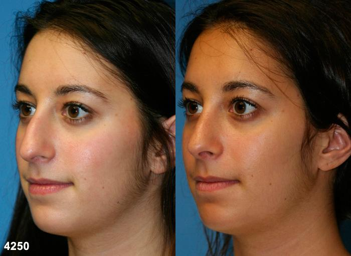 patient-11738-rhinoplasty-nosejob-before-after-2