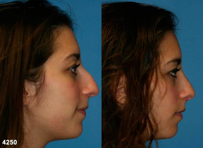 patient-11738-rhinoplasty-nosejob-before-after-3