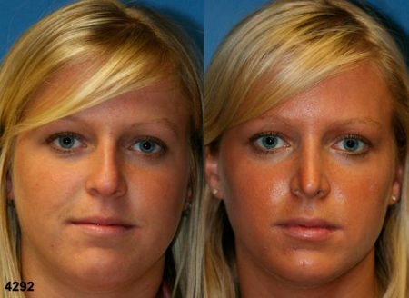 patient-11743-rhinoplasty-nosejob-before-after-3