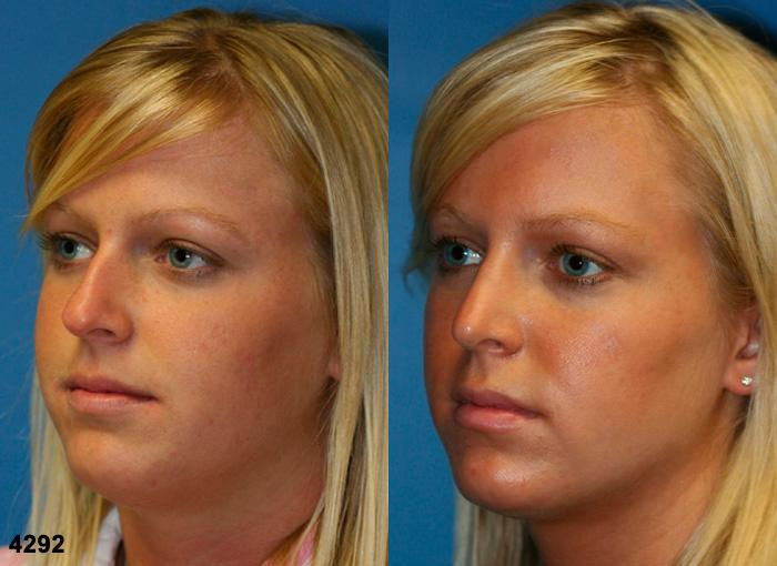patient-11743-rhinoplasty-nosejob-before-after-4