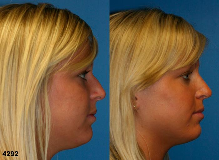 patient-11743-rhinoplasty-nosejob-before-after-5