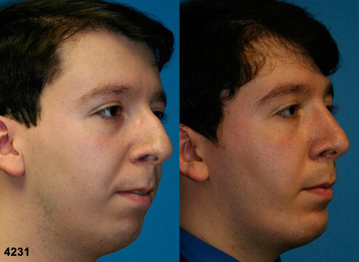 patient-11750-rhinoplasty-nosejob-before-after-4