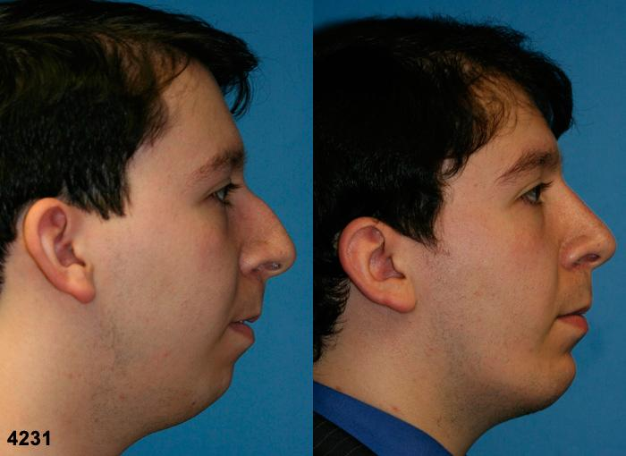 patient-11750-rhinoplasty-nosejob-before-after-5